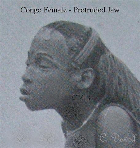Image of Congo female with protruded jaw African descendent