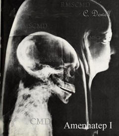 Image of Amenhatep I the X-ray of his malformed skull of the mummy Amenhatep from Colette Dowell private photograph collection
